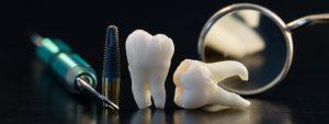 dental imlants in elmhurst
