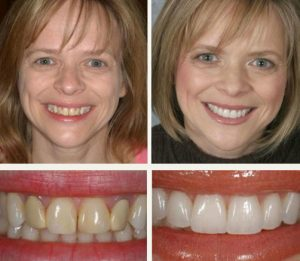 what is the cost of veneers