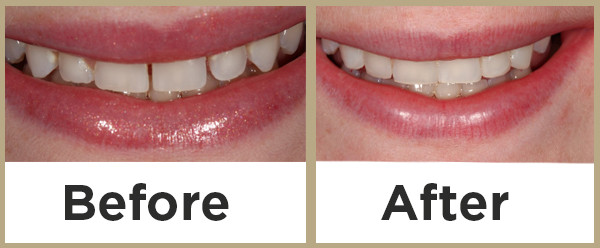 cosmetic bonding in chicago Dr kopp