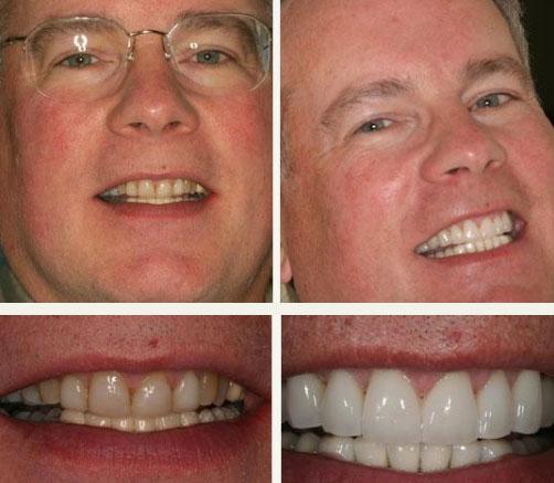 affordable veneers kopp dental