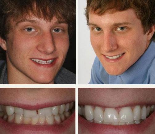veneers kopp dental and associates