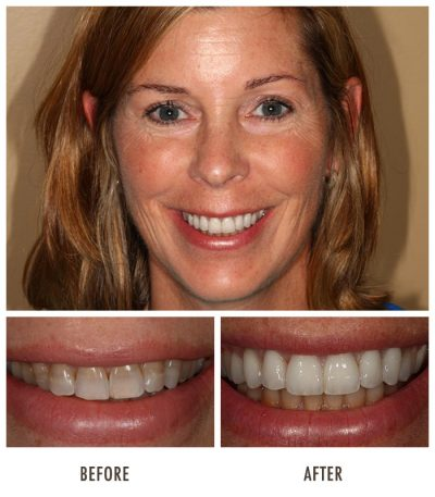 tooth-bonding-porcelain-veneers-chicago
