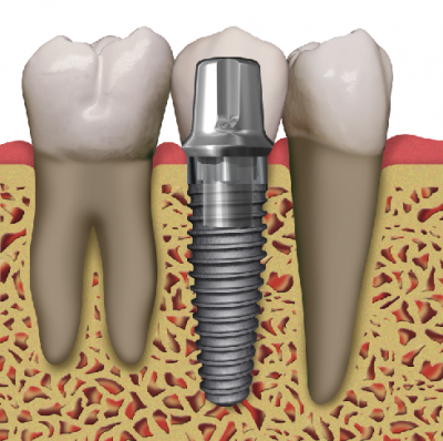 dental implant failures in chicago