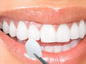 tooth veneers