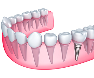 dental-implants-elmhurst